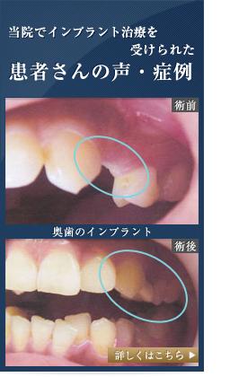 当院でインプラント治療を受けられた患者さんの声・症例