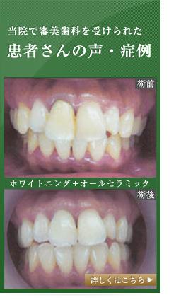 当院で審美歯科を受けられた患者さんの声・症例